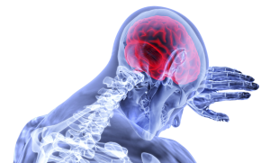 Traumatic Brain Injury